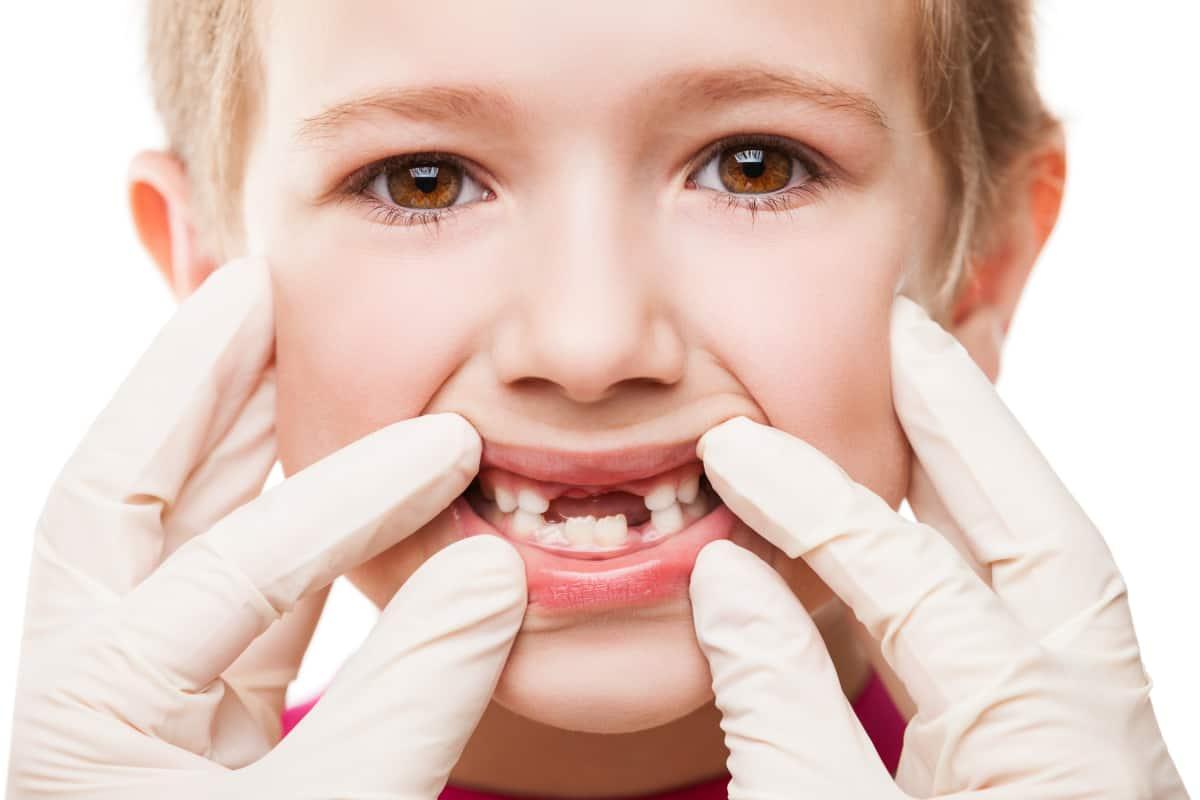 الاسنان للأطفال
