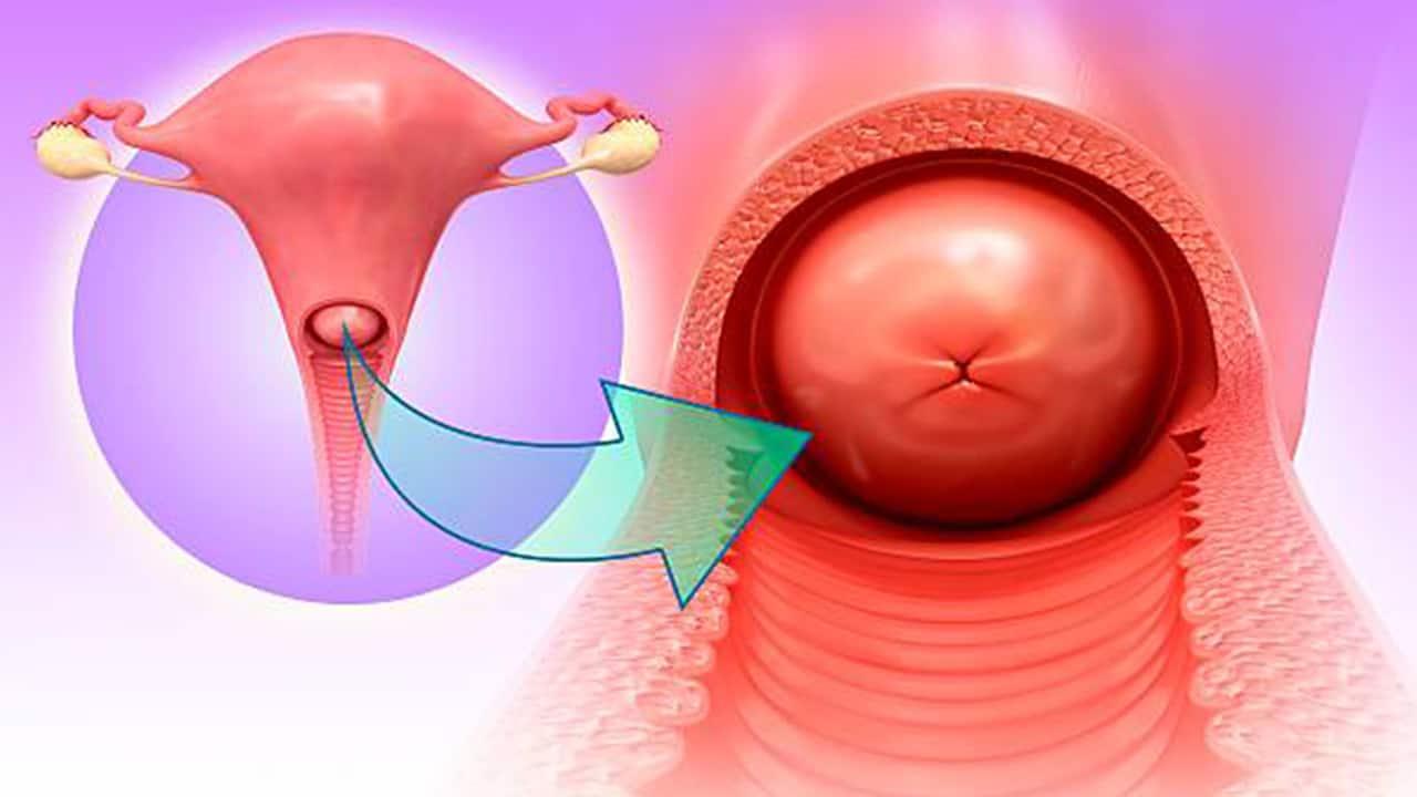التهاب عنق الرحم