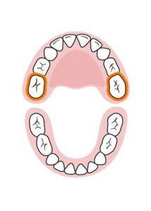 الأسنان الطاحنة العلوية الثانية