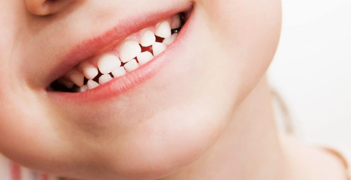 الأسنان اللبنية أو أسنان الحليب بحسب ترتيب ظهورها صور
