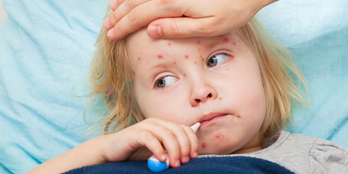 أعراض الجديري المائي عند الأطفال