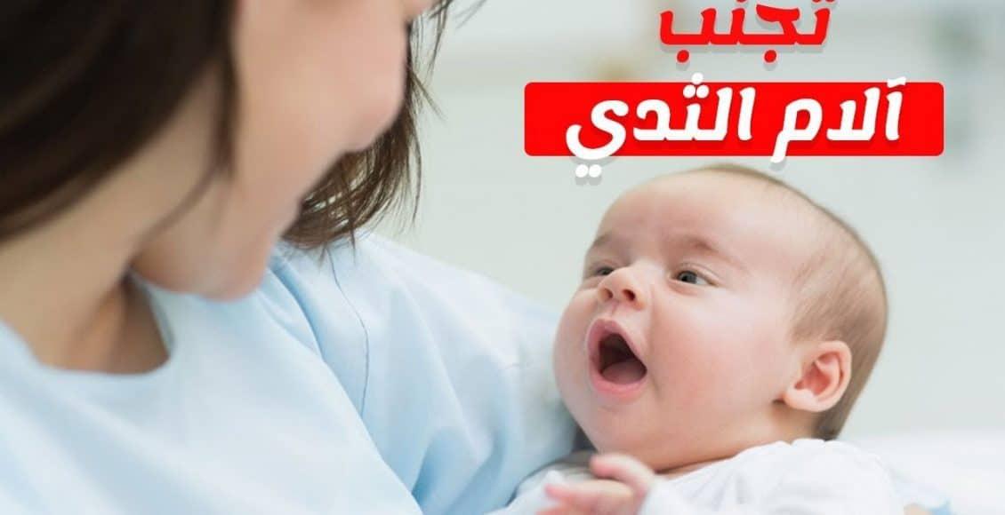 كيفية علاج التهاب الحلمتين أثناء الرضاعة وأهم أسبابها أنا مامي