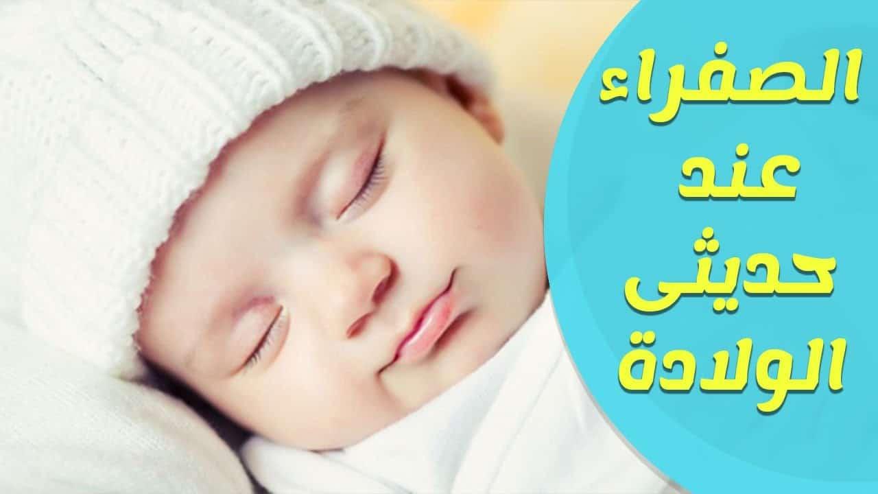 علاج مرض الصفار عند حديثي الولادة