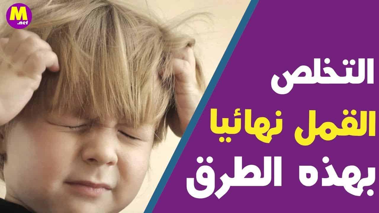 علاج القمل عند الاطفال