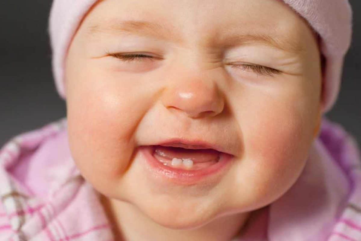 حساسية الجلد عند الاطفال الرضع