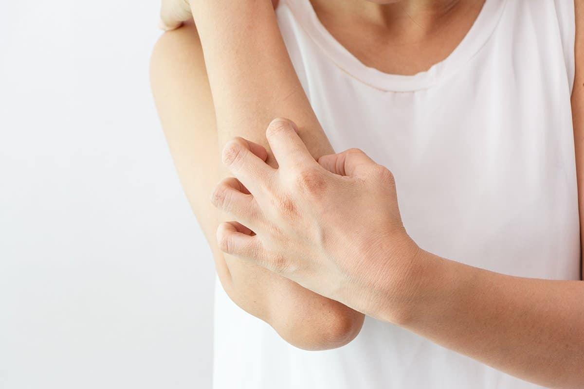 جفاف الجلد عند الاطفال