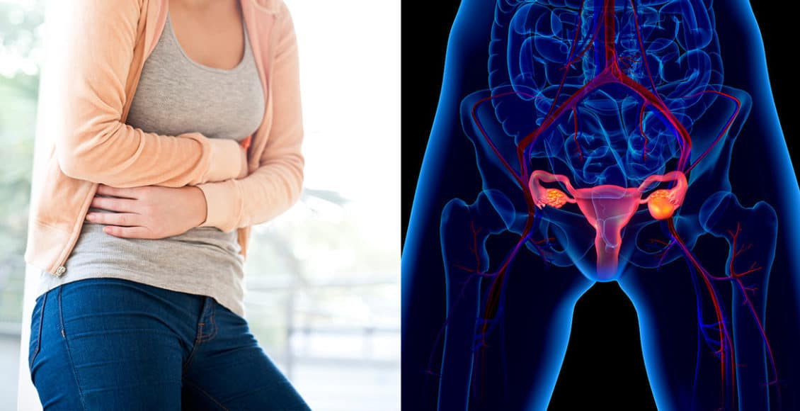 أعراض التهاب عنق الرحم واسبابه وعلاجه
