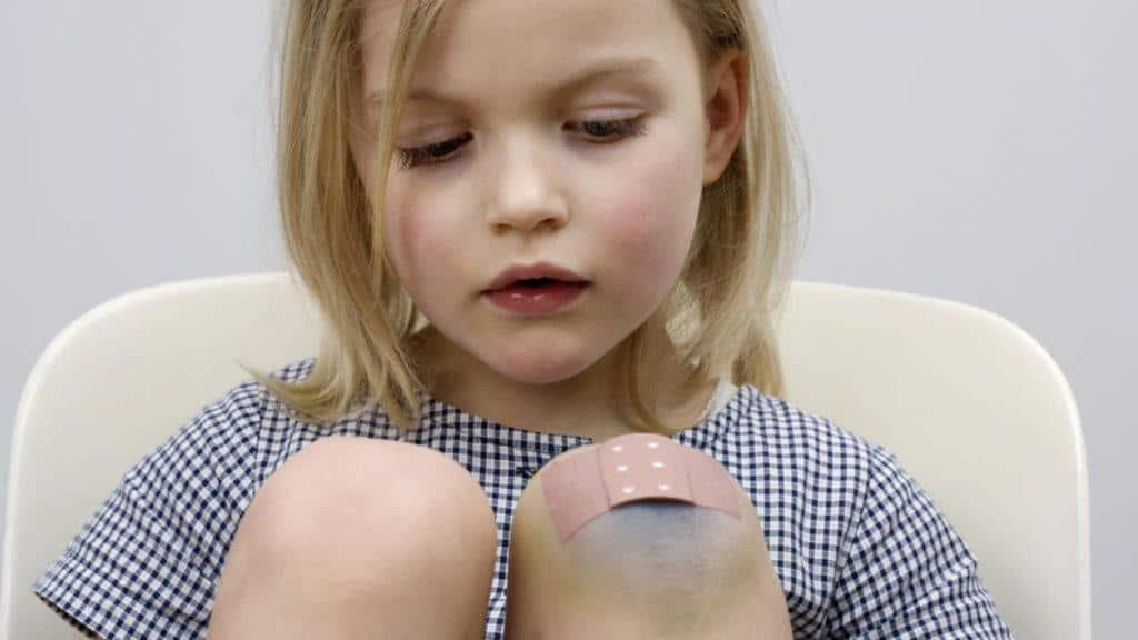 ظهور بقع زرقاء على الجسم عند الأطفال الأسباب والتشخيص والعلاج