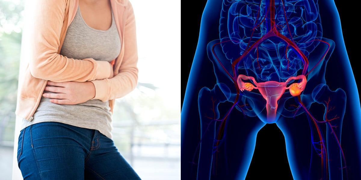 العلاج بالتبريد لعنق الرحم