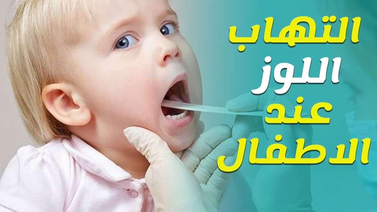 علاج التهاب اللوزتين عند الأطفال بدون مضاد
