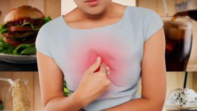 أسباب ظهور بقع بنية على الثدي